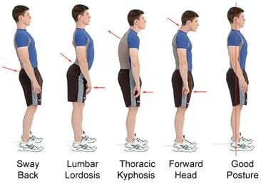 Computerised postural analysis