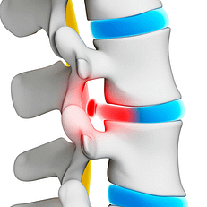 Injury to the disc is one of the most common causes leading to neck pain, back pain and sciatica (pain shooting down the leg).